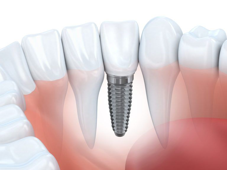 3d Illustration of Dental Implant representaition