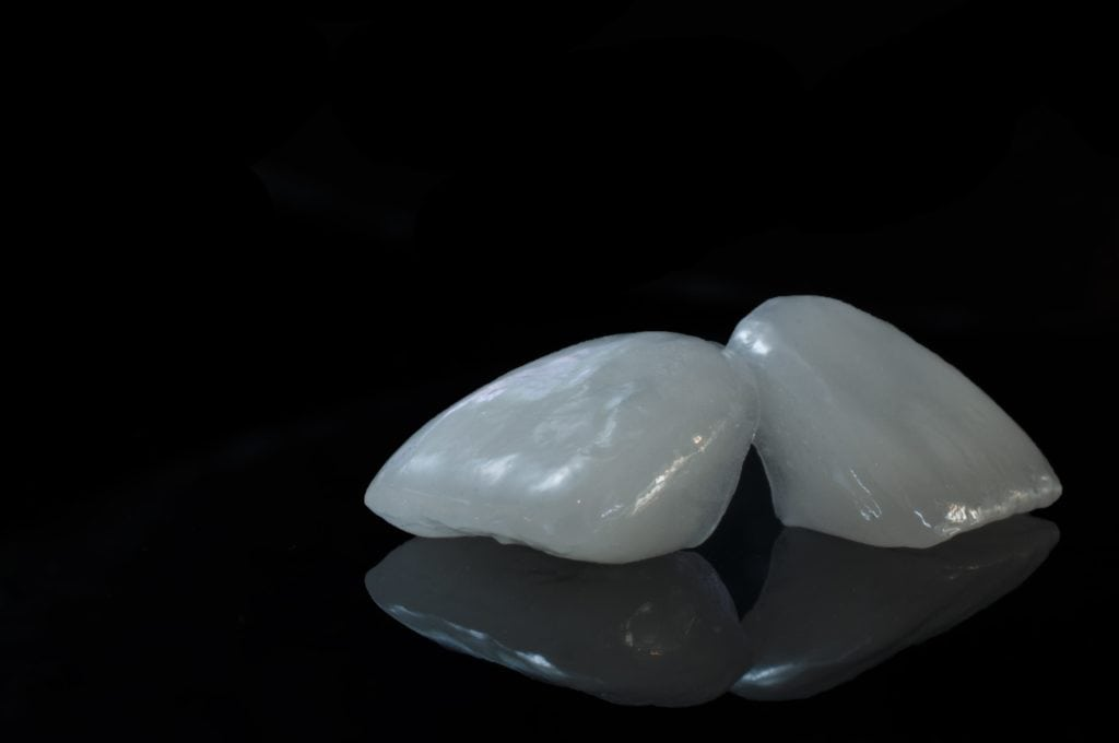 Two pearly white dental veneers on a black background