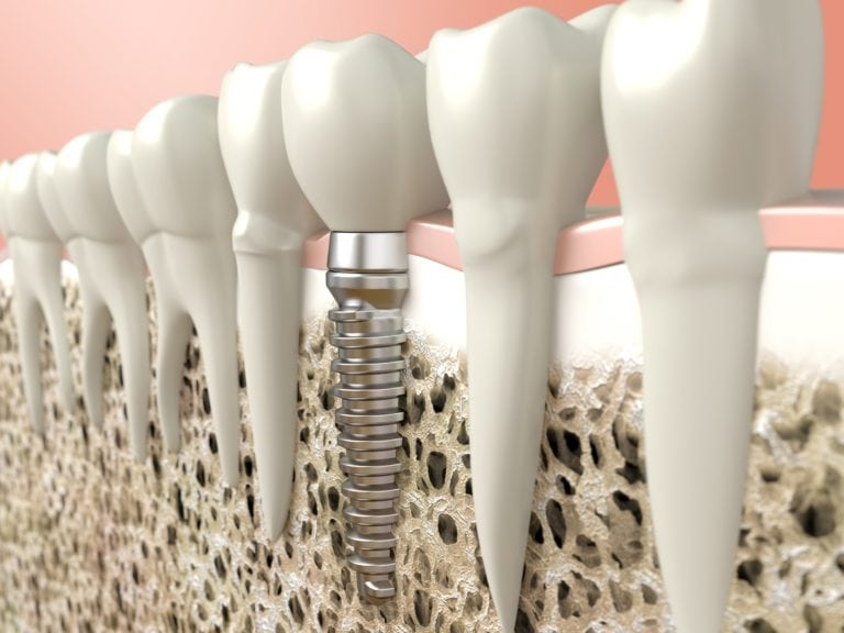 Computer-generated image of a dental implant next to natural teeth