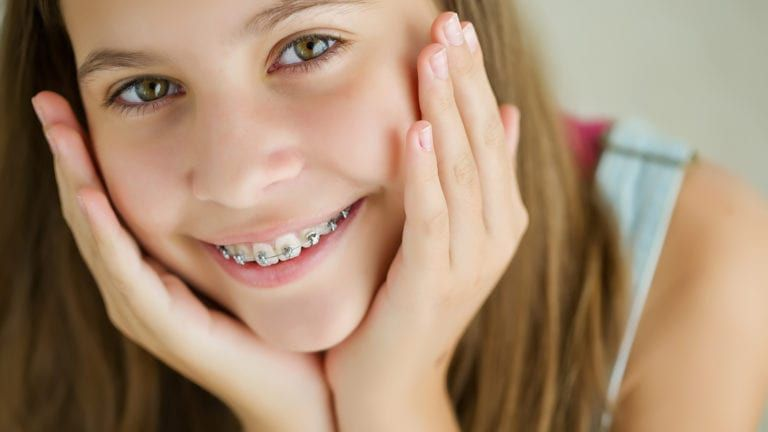 Child smiling with braces